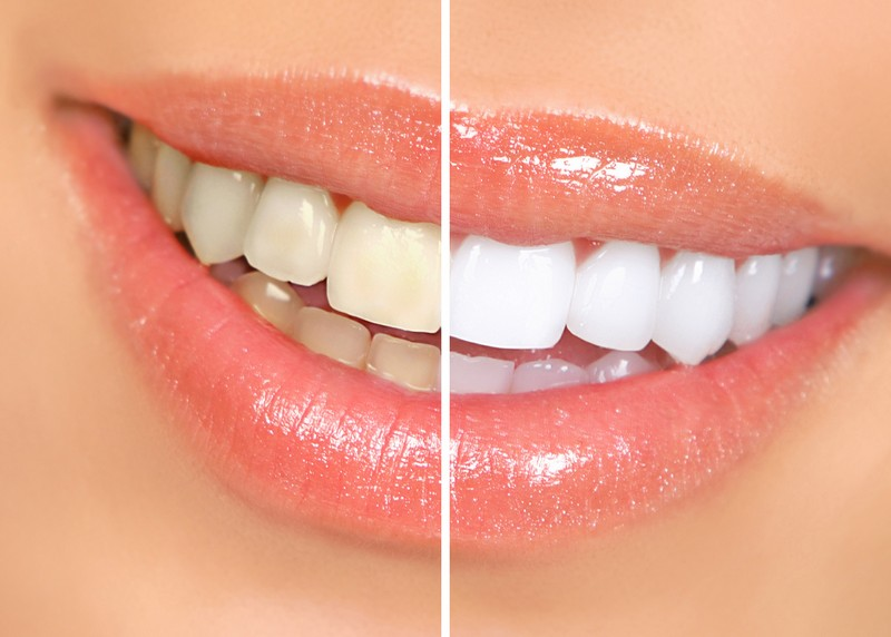 teeth whitening services Danvers, MA